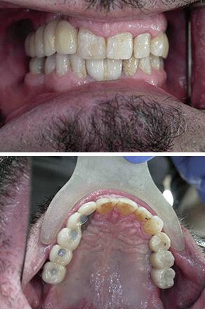 dents manquantes - après