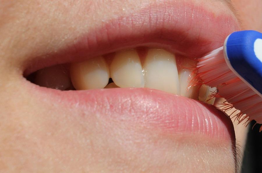 Brossage de dents avec facette - Clinique Richard Landry à Montréal