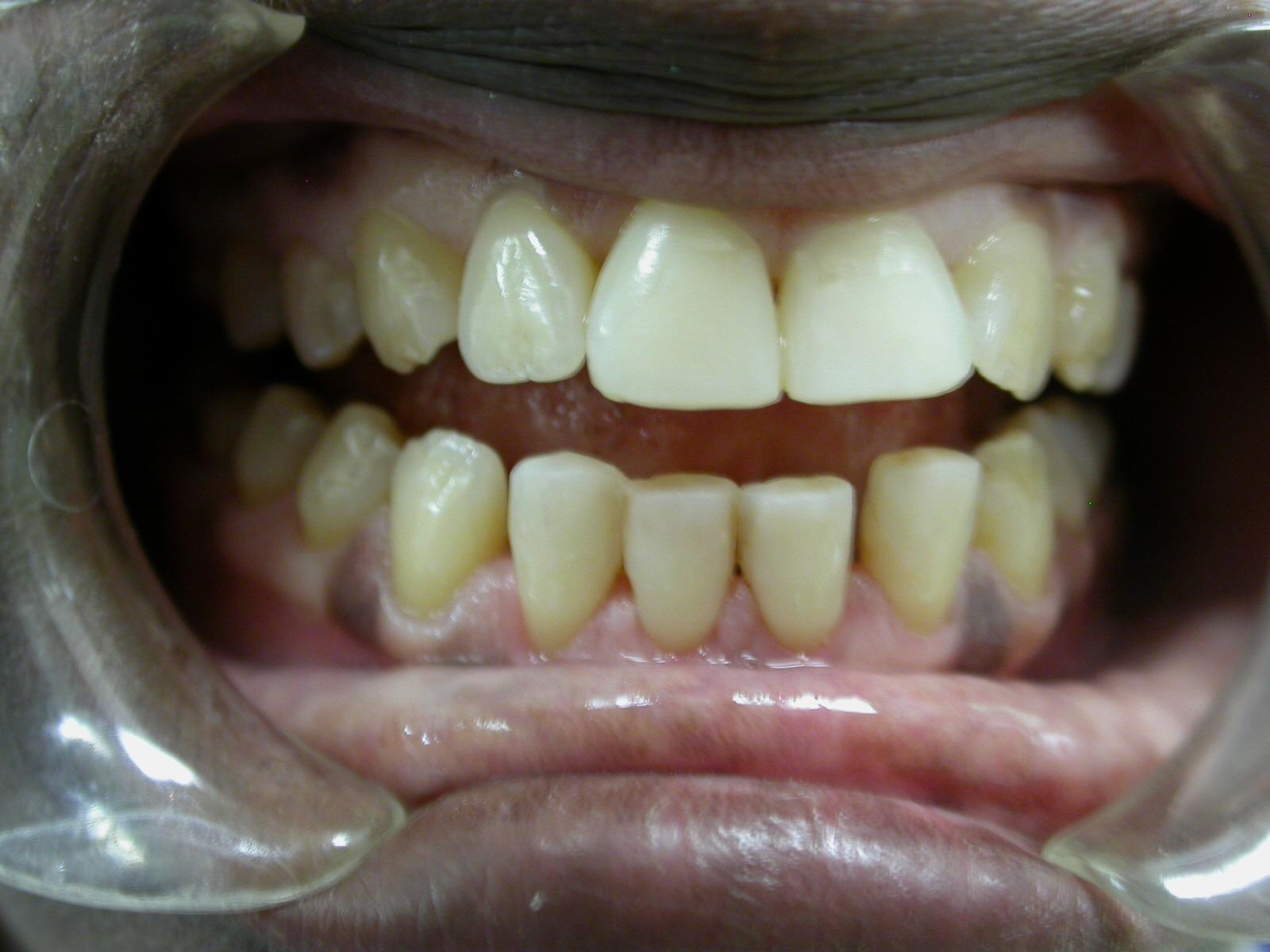 Correction d'une hypoplasie d'émail - après