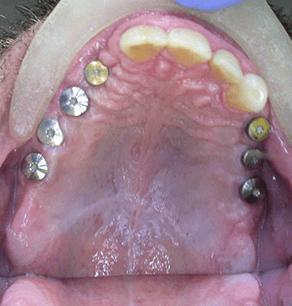 dents manquantes - pendant